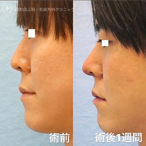 鼻尖形成+鼻中隔延長