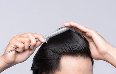 全く新しい薄毛治療、肌の再生治療を