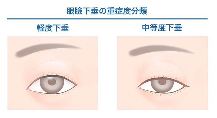 眼瞼下垂の重症度分類