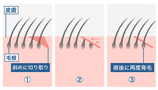 眉下切開の断面解説図