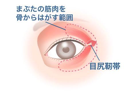 目尻靱帯移動術_2