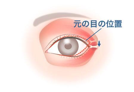目尻靱帯移動術_4