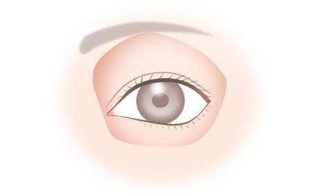 目尻靱帯移動術_5