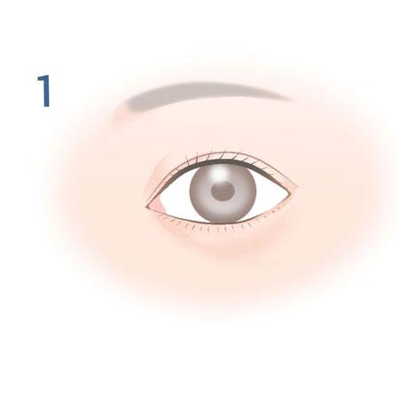 経結膜脱脂法_1
