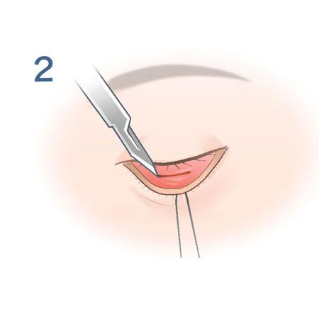 経結膜脱脂法_2