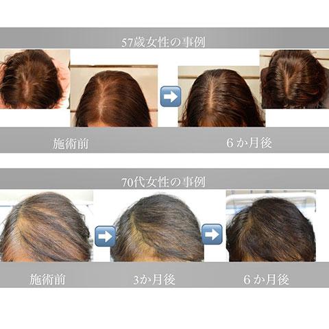 幹細胞培養液注入 薄毛治療