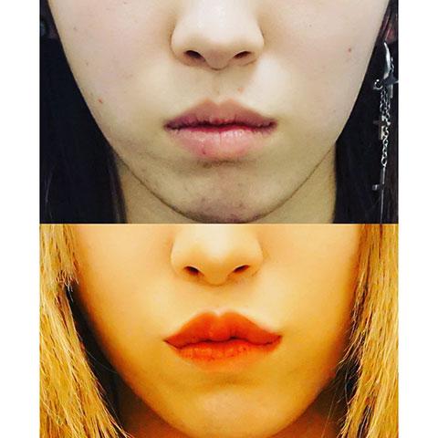 鼻翼縮小、人中短縮、ヒアルロン酸注入(口唇)