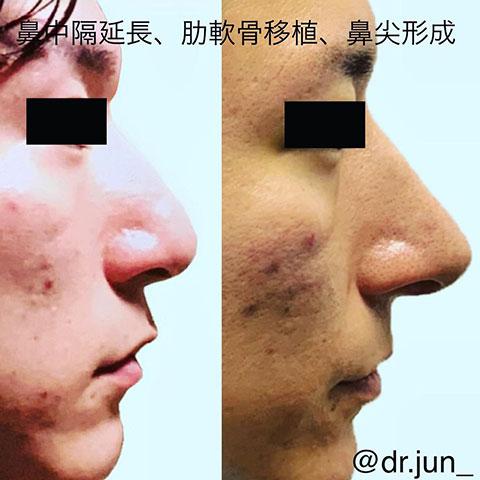 鼻尖形成、鼻中隔延長、肋軟骨移植