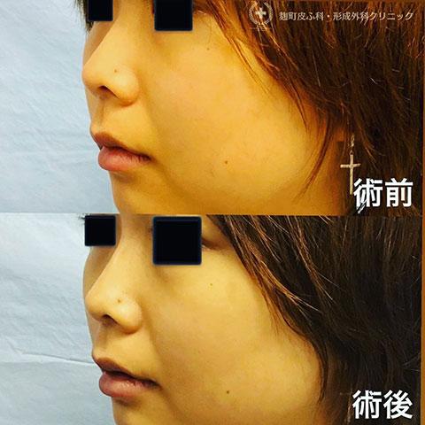鼻根形成(ヒアルロン酸注入)