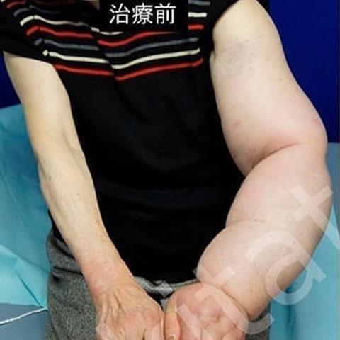 リンパ浮腫治療