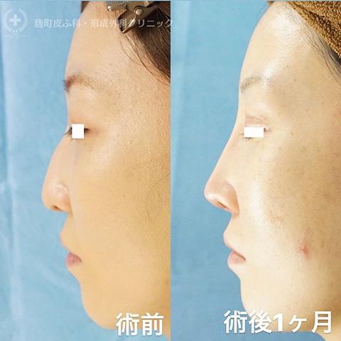 鼻尖形成+耳介軟骨移植+プロテーゼ挿入