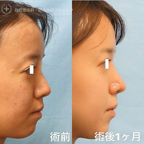 鼻尖形成、耳介軟骨移植、鼻翼縮小
