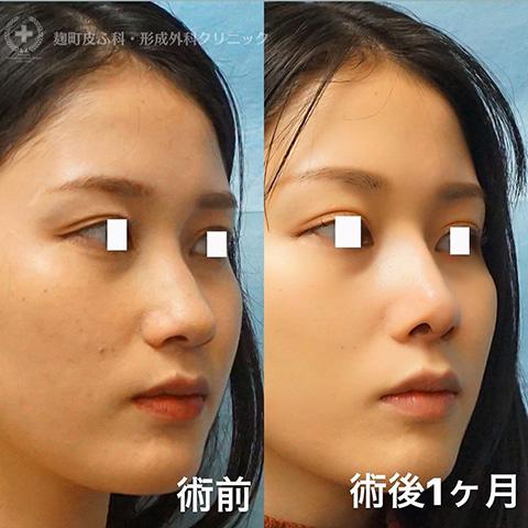 鼻尖形成+耳介軟骨移植