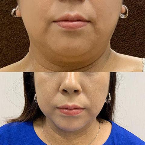 脂肪溶解注射 カベルライン 2回
