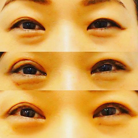 眼瞼下垂症治療、目の下のたるみ取り(経結膜脱脂法)