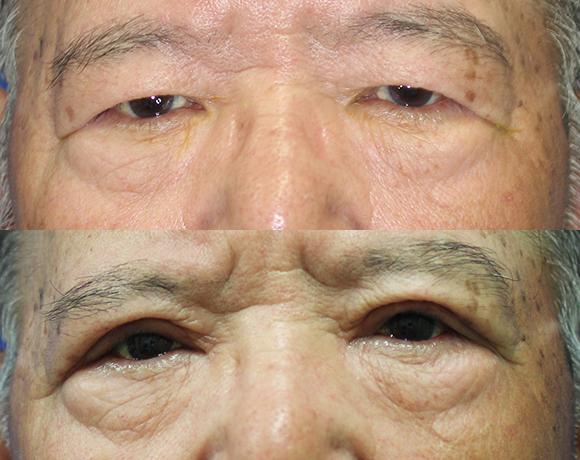 眼瞼下垂 [術前/術後](男性)