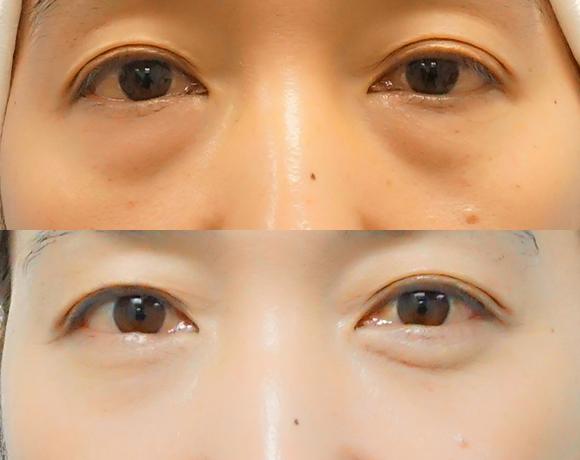 目の下のクマとり [術前/術後50日](女性)