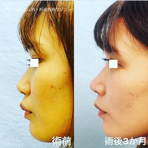 忘れ鼻形成(鼻尖形成、耳介軟骨移植)
