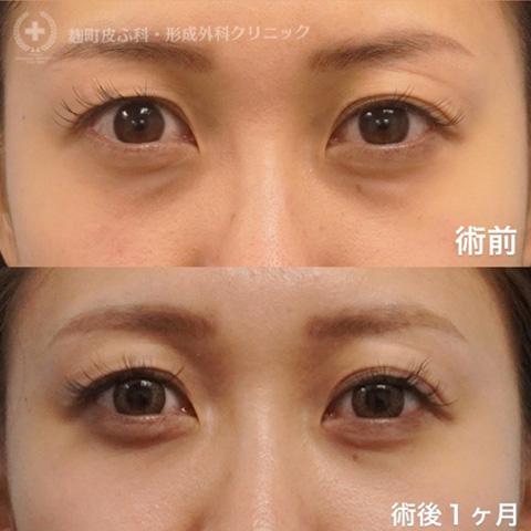 目の下のたるみ取り(裏ハムラ法)