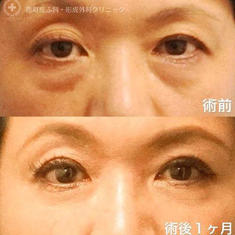 目のクマ除去〔経結膜脱脂、裏ハムラ法〕+埋没法のコンビネーション治療