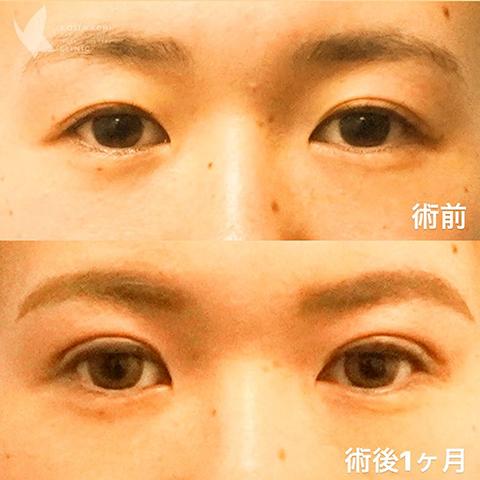 【オリジナル埋没法】術前/1ヶ月