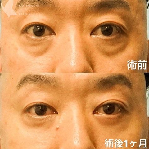 目のクマ除去〔裏ハムラ法〕