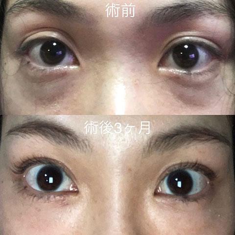 目のクマ〔経結膜移動術、裏ハムラ法〕 術前/術後