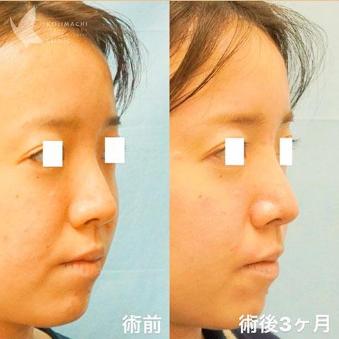 忘れ鼻形成 鼻尖形成+耳介軟骨移植、鼻翼縮小