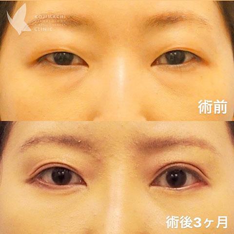 眼瞼下垂症治療、目尻切開、たれ目形成(結膜切開法)