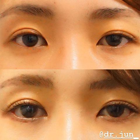 【当院オリジナル下眼瞼下制術】術前/1ヶ月