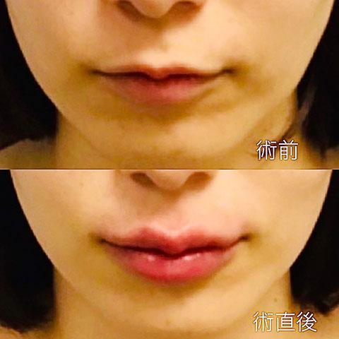 唇ヒアルロン酸注入