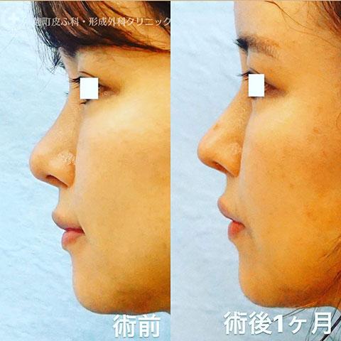 【他院修正】鼻尖形成、鼻中隔延長