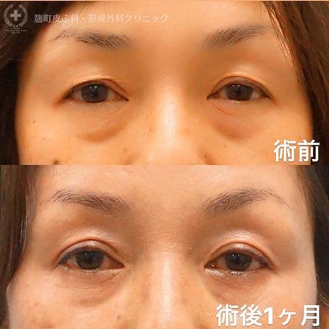 【眼瞼下垂術】術前/1ヶ月