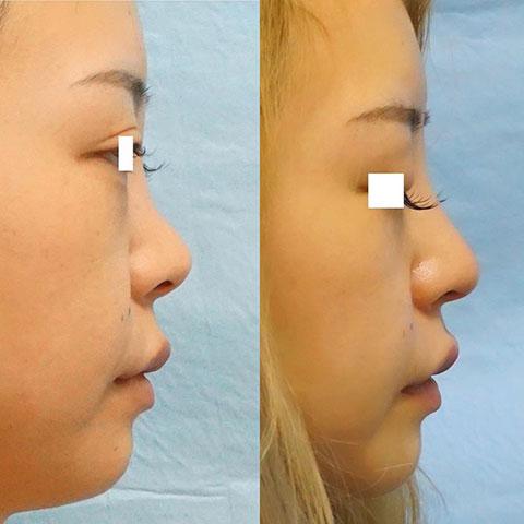 【他院修正】鼻尖形成、プロテーゼ入れ替え