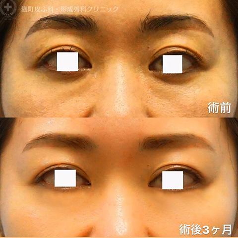 目のクマ除去〔経結膜脱脂、裏ハムラ法〕