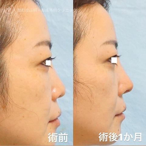 忘れ鼻形成 鼻尖形成+耳介軟骨移植