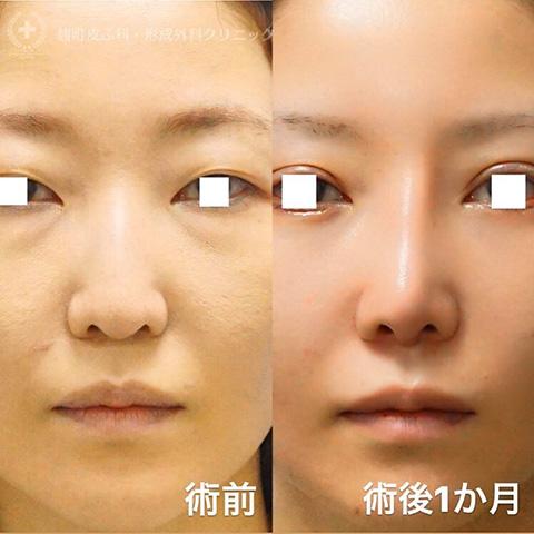 鼻尖形成+耳介軟骨移植、プロテーゼ挿入