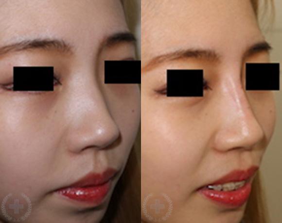 隆鼻(ヒアルロン酸) [術前/術後](20代・女性)