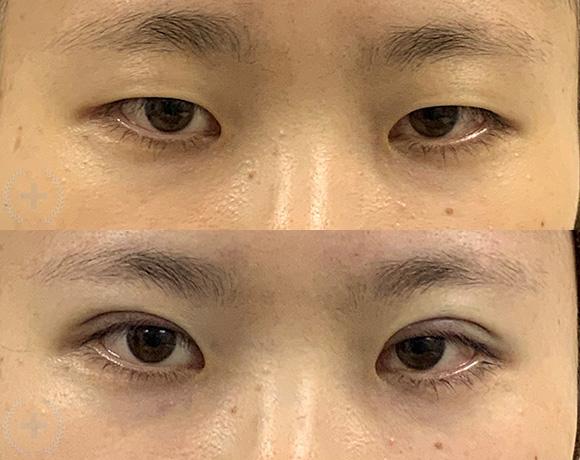 埋没法 2点留め [術前/術後](20代・女性)