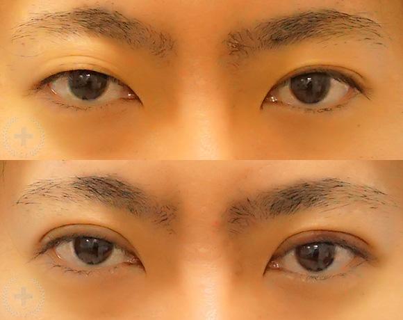 埋没法 4点留め [術前/術後 7日後](30代・男性)