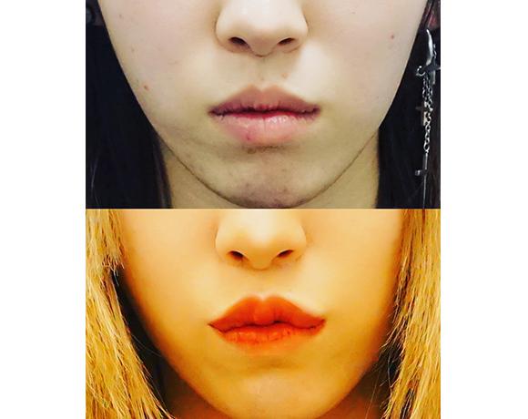 人中短縮、小鼻縮小、口唇ヒアルロン酸 [術前/術後](女性)