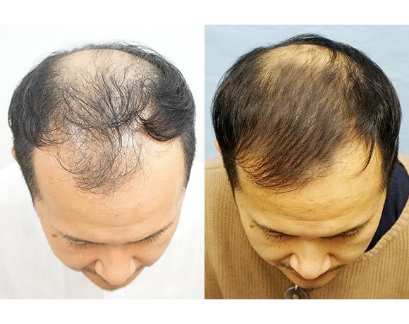 発毛治療 幹細胞培養上清液注射療法 [術前/術後 2か月](男性)
