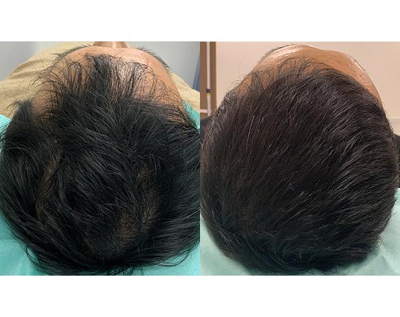 発毛治療 幹細胞培養上清液注射療法 [術前/術後2か月](男性)