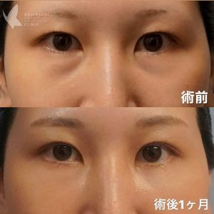 目のクマ除去〔裏ハムラ法〕 術前/術後1ヶ月