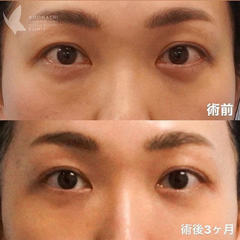 目のクマ除去〔裏ハムラ法〕術前/術後3ヶ月