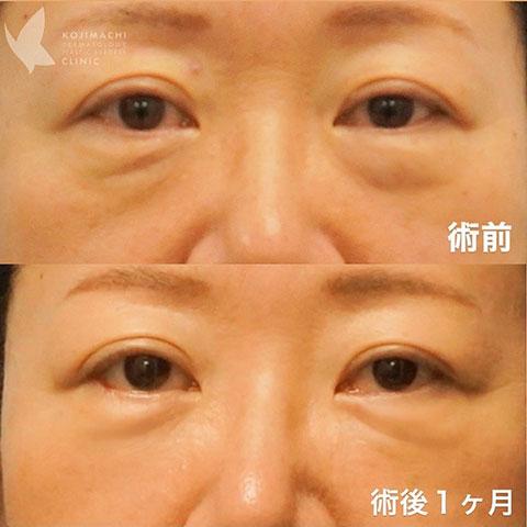 目のクマ除去〔裏ハムラ法〕術前/術後1ヶ月
