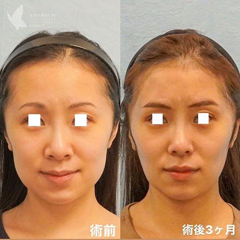 忘れ鼻 小鼻縮小+バッカルファット除去(術後3か月)