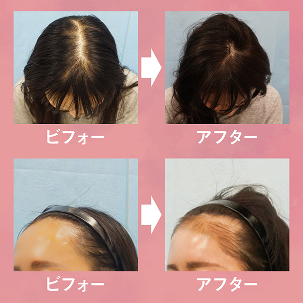 【メディア掲載】女性の薄毛治療「MOTEO」に掲載されました。
