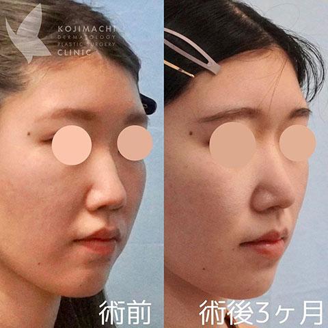 忘れ鼻形成 鼻尖形成+耳介軟骨移植 術後3か月